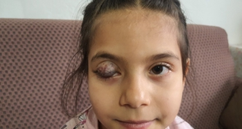 Göz kapağında doğuştan tümör bulunan Beyza'nın yardım çığlığı