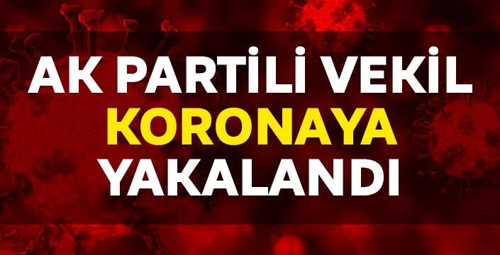 AK Partili vekil koronaya yakalandı