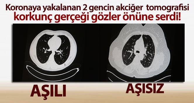 Aşılı ve aşısız olarak koronaya yakalanan 2 gencin akciğer tomografisi gerçeği gözler önüne serdi