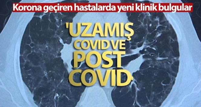Korona virüs geçiren hastalarda yeni klinik bulgular: 'Uzamış Covid ve post Covid'